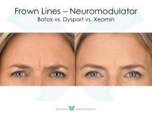 Crown Lines | Dr. Suneel Chilukuri