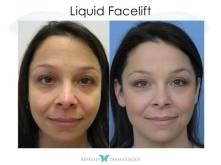 Liquid Facelift | Dr. Suneel Chilukuri