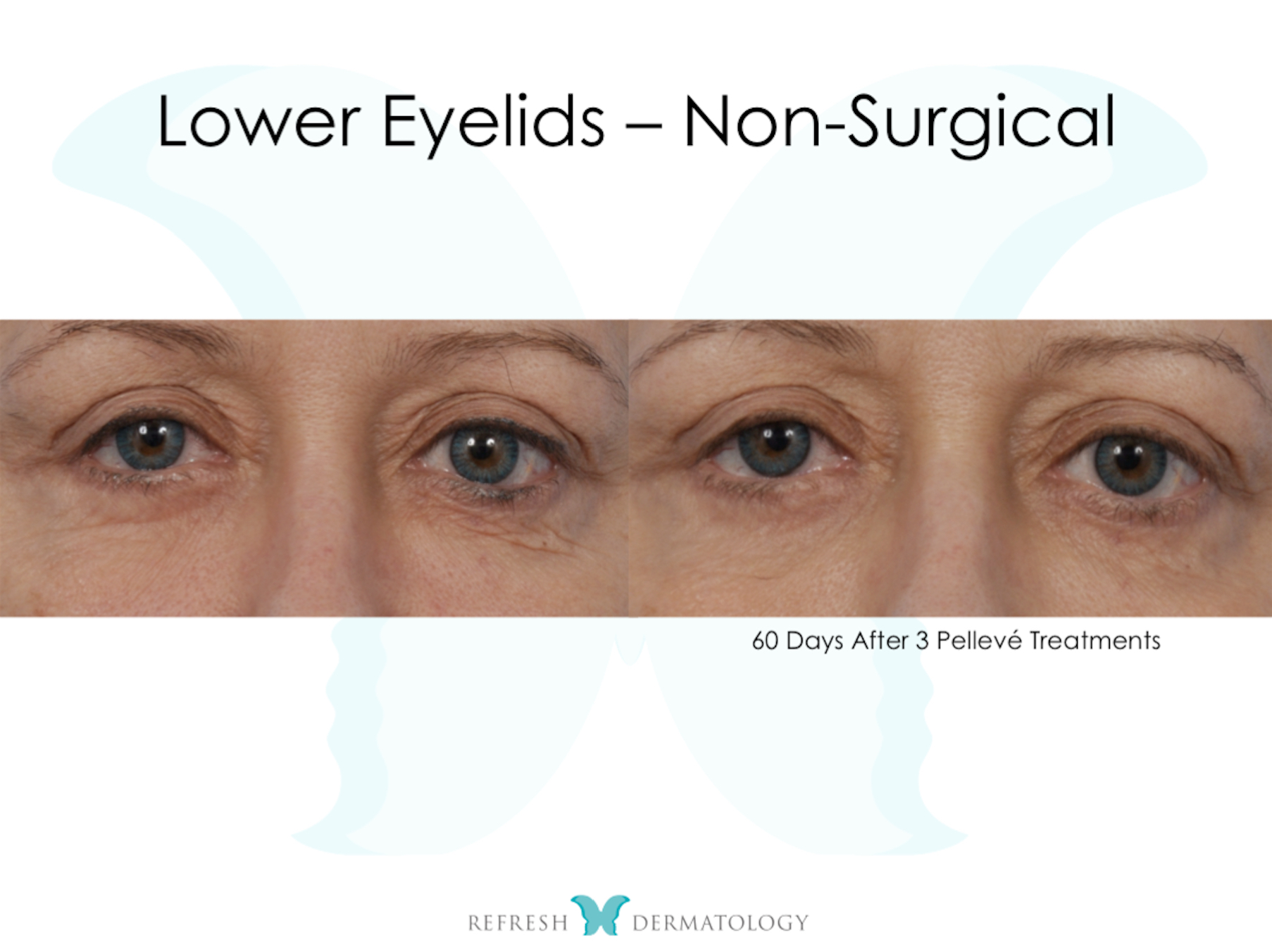 Lower Eyelids Non Surgical | Dr. Suneel Chilukuri