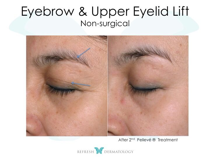 Brown Lift Non-Surgical | Dr. Suneel Chilukuri