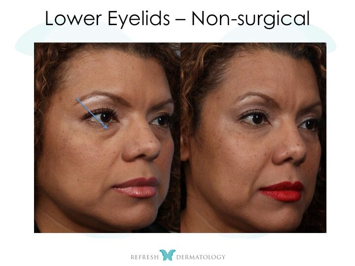 Upper Eyellid Lift | Dr. Suneel Chilukuri