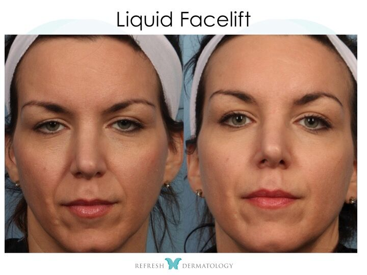 C-Lift (Liquid Facelift) | Dr. Suneel Chilukuri
