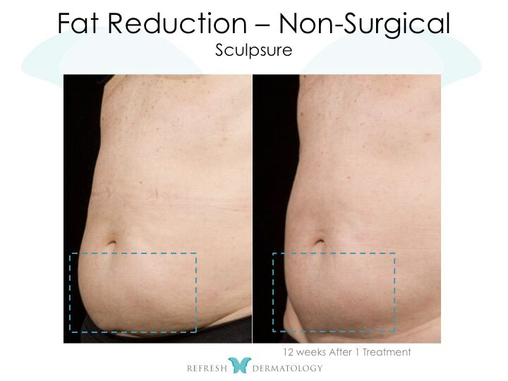 Fat reduction | Dr. Suneel Chilukuri