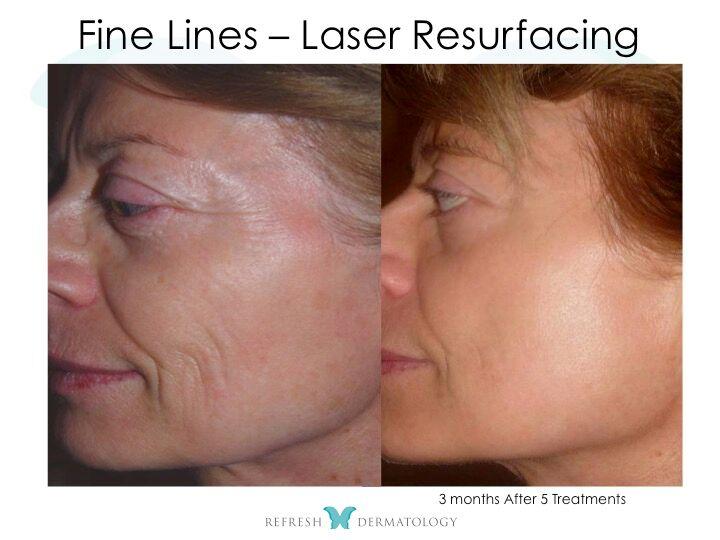 Fine lines | Dr. Suneel Chilukuri