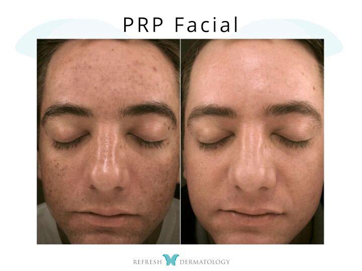 PRP Facelift