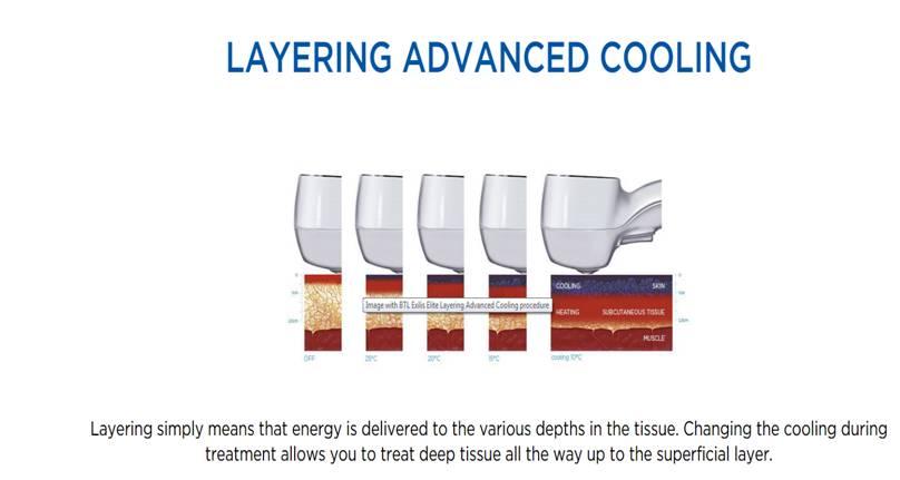 Layering | Dr. Suneel Chilukuri