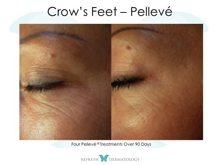 Crow Feet Pelleve | Dr. Suneel Chilukuri