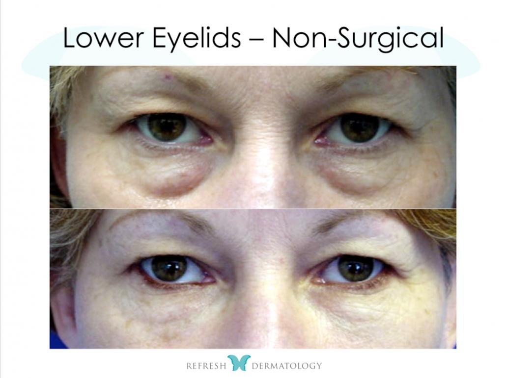 Lower Eyelids Non Surgical | Dr. Suneel Chilukuri