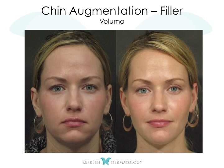 ical and Surgical Chin Enhancement | Dr. Suneel Chilukuri