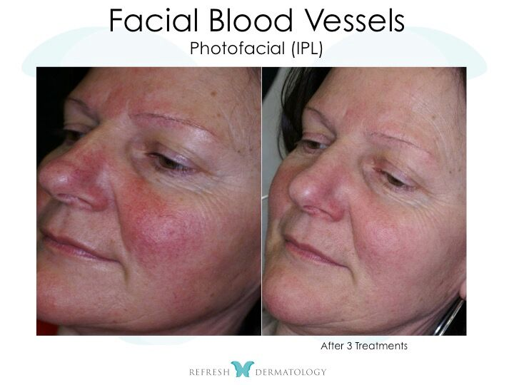 Liquid Facelift Photofacial | Dr. Suneel Chilukuri