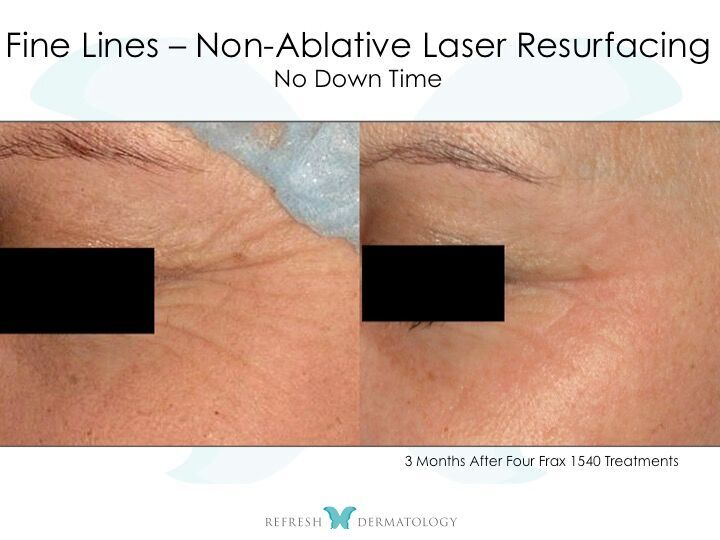 Laser Resurfacing | Dr. Suneel Chilukuri