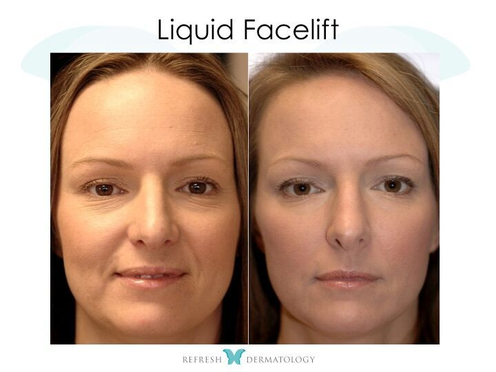 C-Lift (Liquid Facelift) | Dr. Suneel Chilukuri