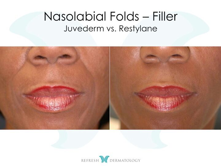 Nasolabial Folds | Dr. Suneel Chilukuri