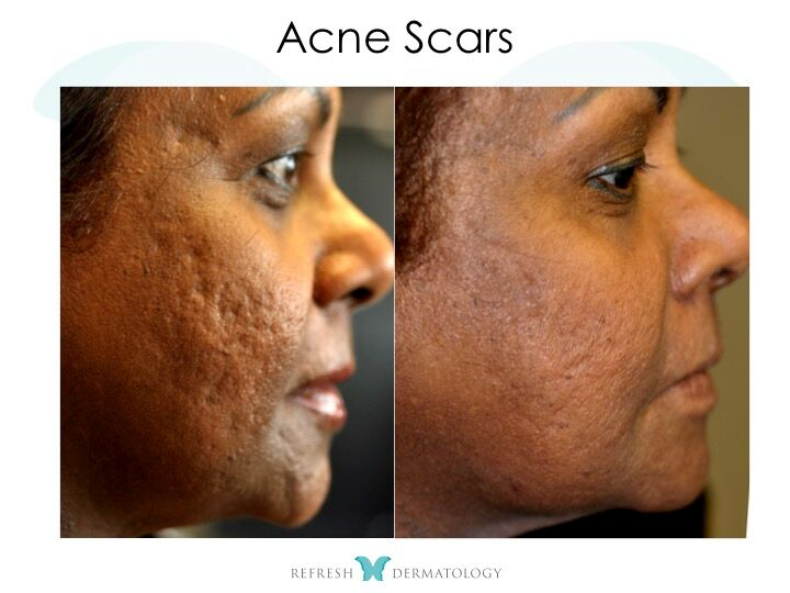 Acne Scars | Dr. Suneel Chilukuri
