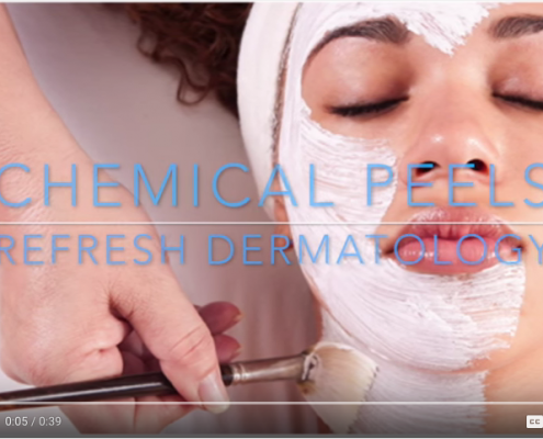 Chemical Peel | Dr. Suneel Chilukuri